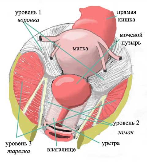 Повреждение связок матки